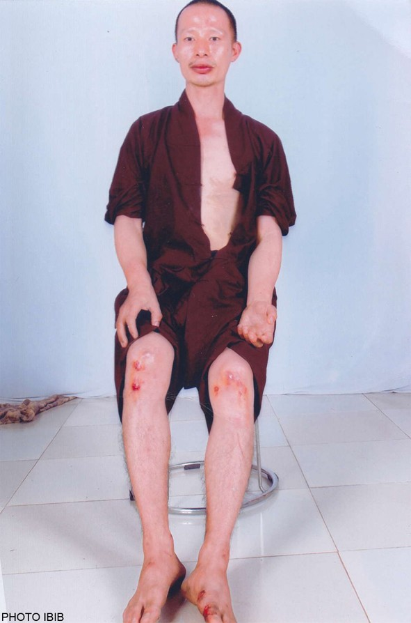 Thich Quang Thanh after his beating by police