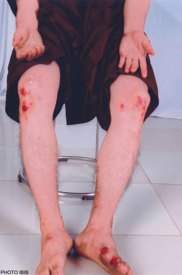 Thich Quang Thanh après son tabassage par la police