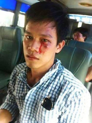 Một biểu tình viên khác bị đánh chảy máu mắt đang bị bắt trên xe buýt