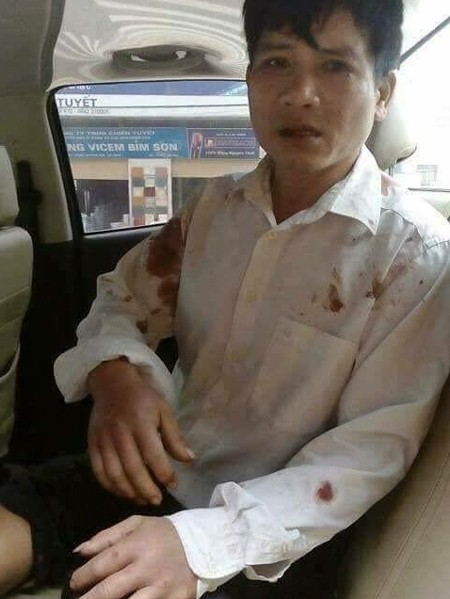 Pastor Nguyễn Trung Tôn after his attack (Photo Brotherhood for Democracy)